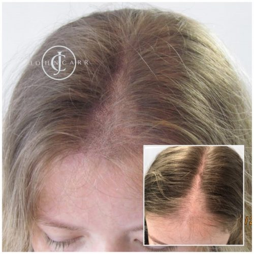 Scalp MicroPigmentation by Melissa Carr Cosmetic Tattooing i