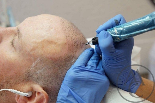 Scalp Micropigmentation Shaved Head