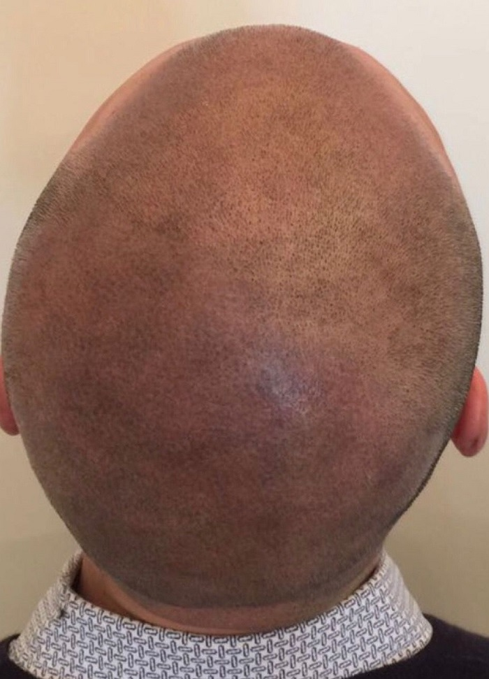 smp alopecia after
