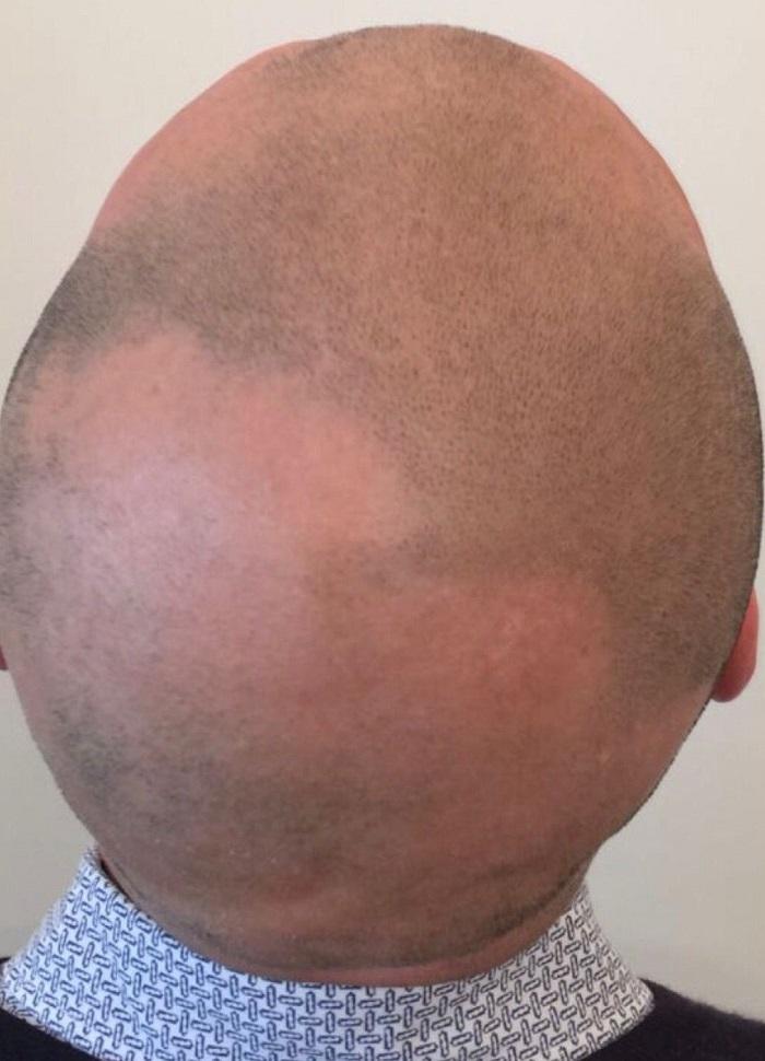 smp alopecia before