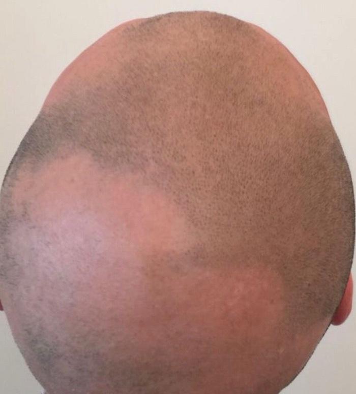 smp-alopecia-crop