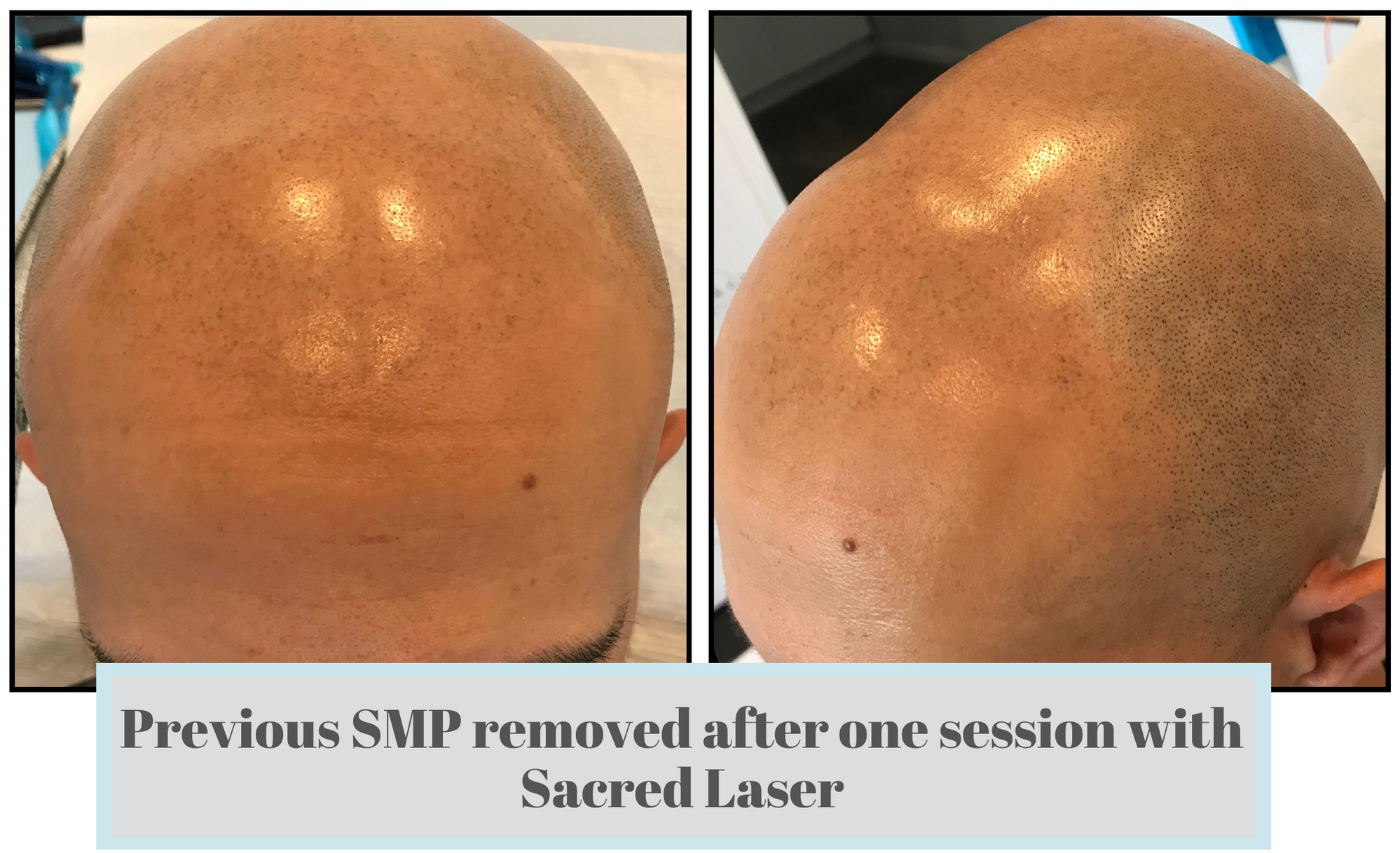 Laser Tattoo Removal SMP FIx