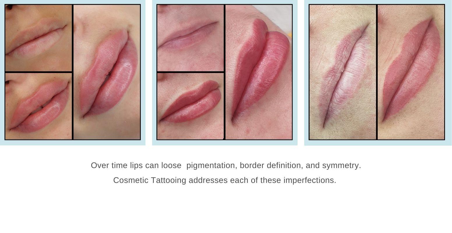 Lip pigmentation repaired