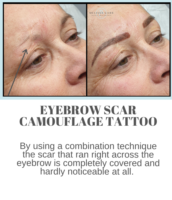 Eyebrow Scar Camouflage tattoo